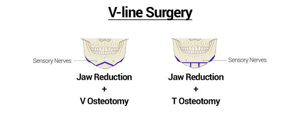 V line surgery